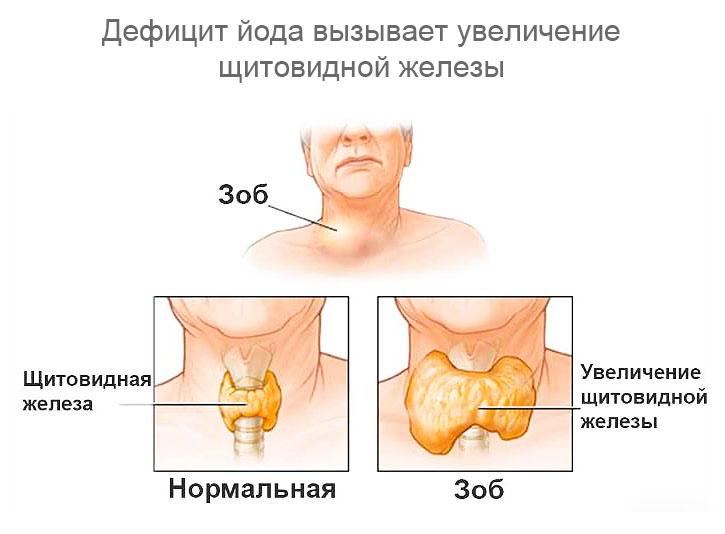 Можно ли пить йодомарин при беременности